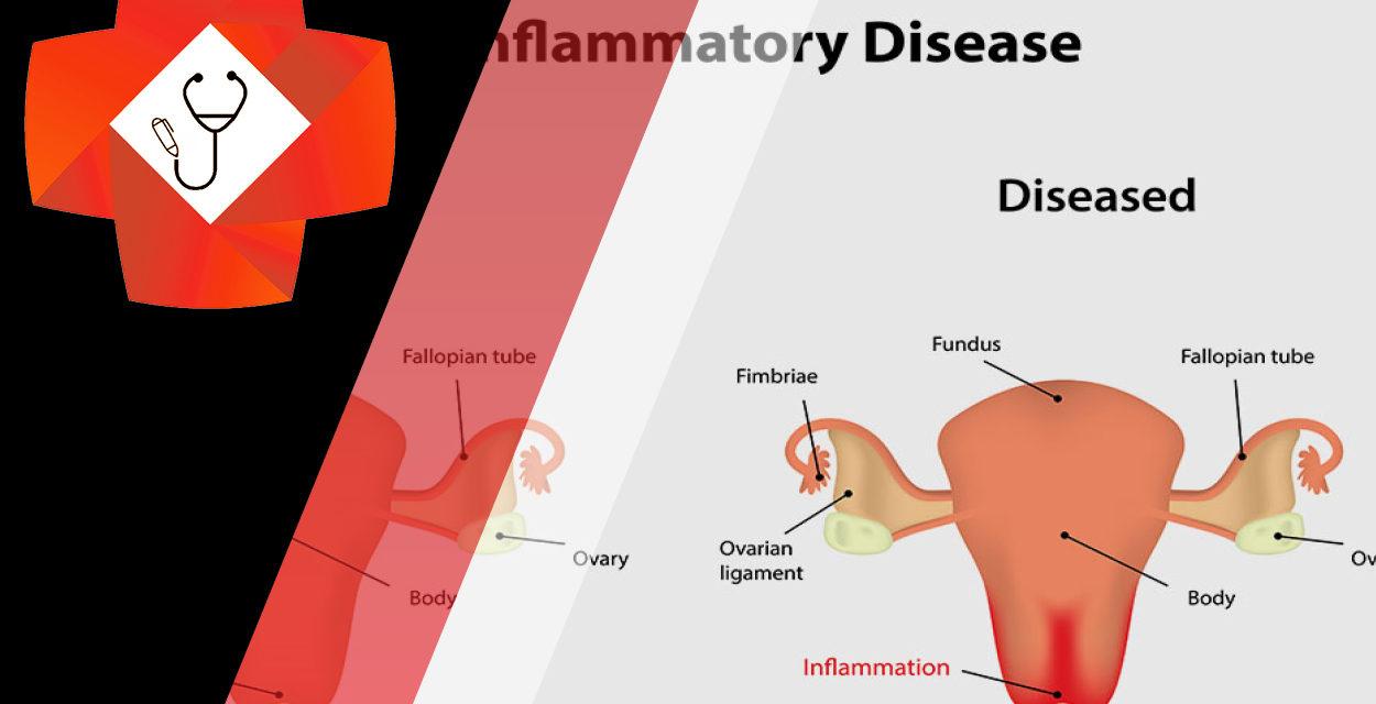 Pelvic Inflammations, Representations & Examinations