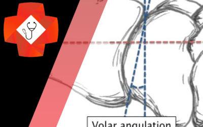 Distal Radius Fracture Management in the ED
