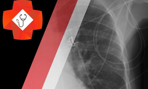 Respiratory Failure Post Thoracocentesis
